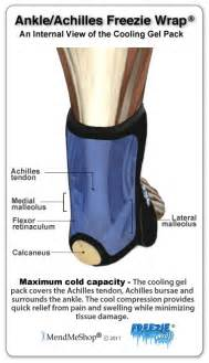Aidmyachilles com what is a strained tendon or a tendon tear