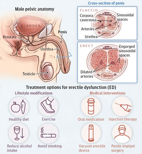 10 Most Common Sexual Problems by Erectile Dysfunction Urology Jama The Jama Network