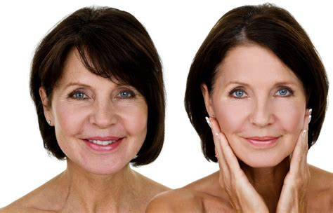 women face lift botox vs juvederm which is right for you bense surgi spa