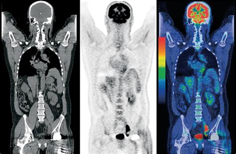 pet ct guidelines scottish clinical imaging network