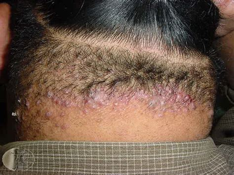 does hair bumps hurt does hair bumps hurt causes symptoms lumps and bumps at back or side of neck small large