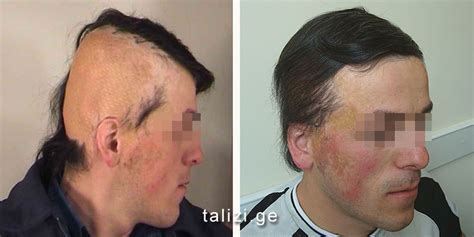 hair style for men haur transplant scar hair transplantation in postburn scars hair