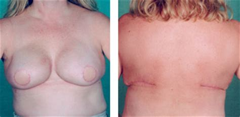 nipple tattoo following mastectomy document moved