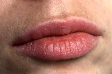 Herpes Swinging 28 Images 25 Best Ideas About Young