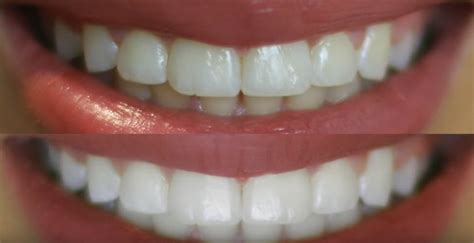 teeth whitening top  ways     smile widely