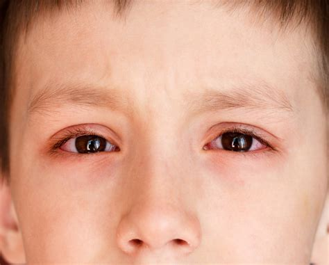 pink eye color pink eye conjunctivitis causes symptoms treatment