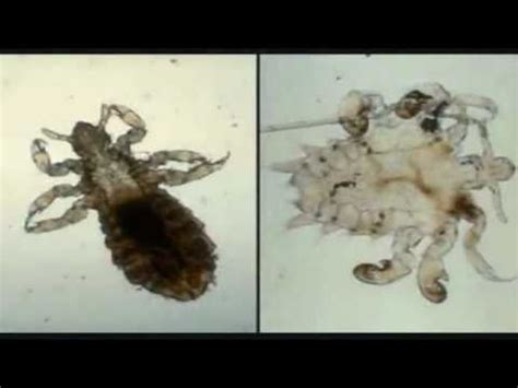 diatomaceous earth for bed bugs full download how to get rid of bedbugs avoid bed bug