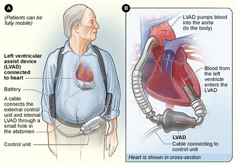 Cardiac Surgery - Ventricular Assist Devices (VAD) Lvad Clinic