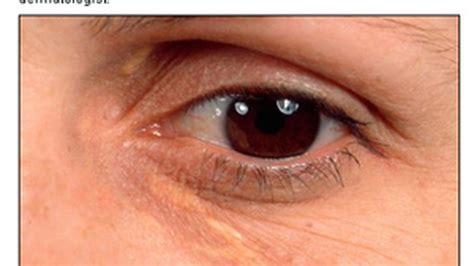 Imagenes De Ojos Inflamados | marcas amarillas en los ojos son quot se 241 al de alerta