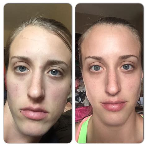 30 day water challenge before and after no excuse water challenge 2015 results no excuse