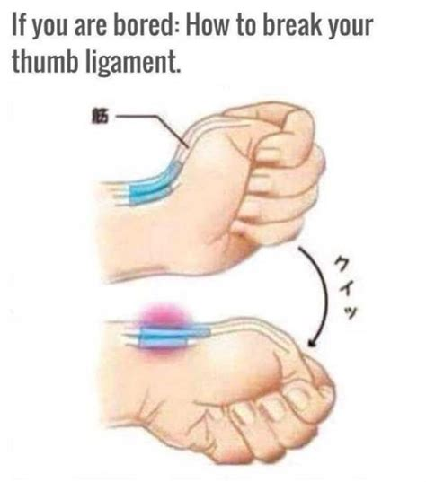 how to finger how to dislocate your thumb 14 pics
