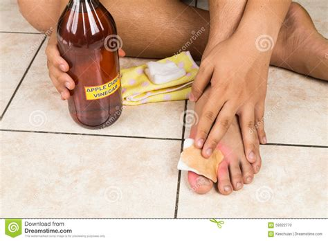 itching remedies apple cider vinegar apple cider vinegar effective remedy for skin itch fung stock photo image
