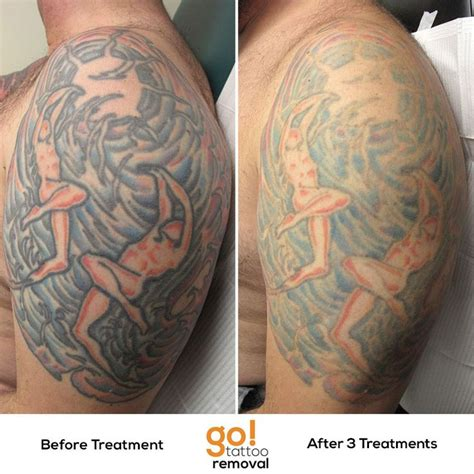large tattoo removal before and after this large is showing substantial fading after 3