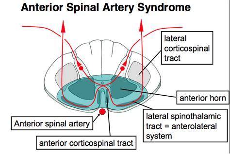 anterior section anterior spinal artery syndrome anterior spinal artery