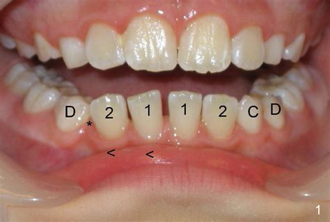 canine teeth dental education lecture