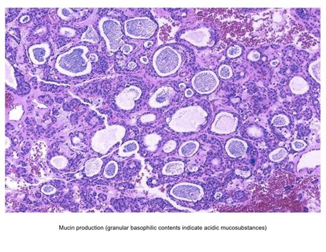 Pathology Outlines Thyroid Adenoma by Pathology Outlines Follicular Adenoma