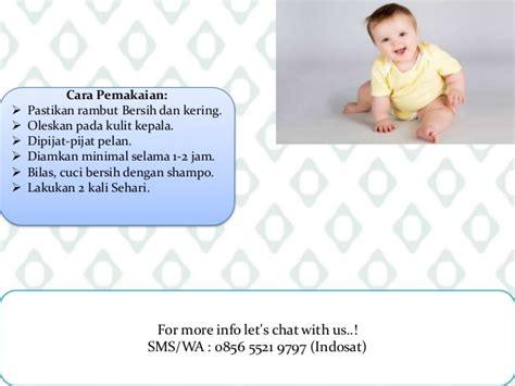 Minyak Kemiri Bayi distributor minyak kemiri bayi 0856 5521 9797 indosat