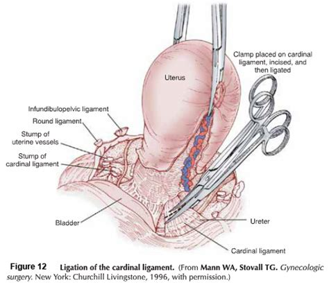 Exelent Uterine Anatomy Ligaments Gallery - Anatomy And Physiology ...
