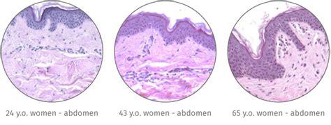ffpe sections histoskin 174 ffpe skin tissue sections genoskin