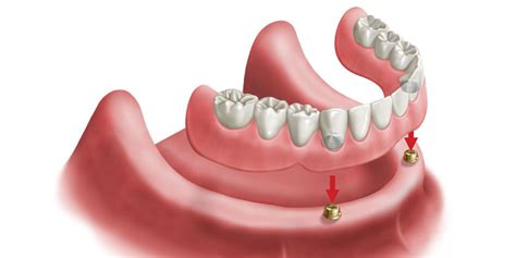 Location Finder Implant Locator 174 Overdentures Dental Implants Dentures Lab