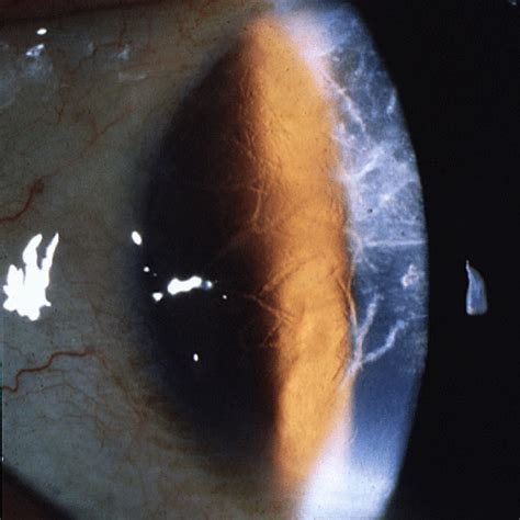 corneal dystrophy corneal dystrophies presenting as recurrent erosions ophthalmology review