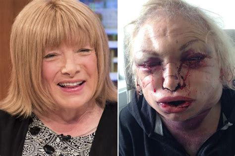 uk celebrities turning 40 in 2018 kellie maloney surgery nearly killed me and turned me