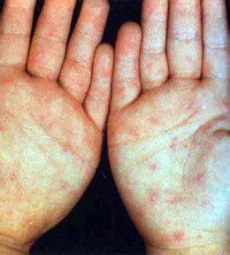 pain  footand feeling unwell blisters  footand palm