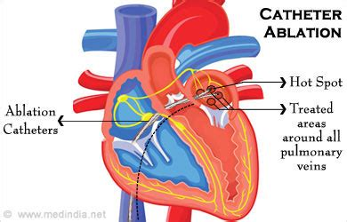 afib ablation side effects what are the symptoms of atrial fibrillation