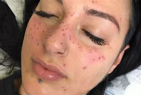 tattoo freckles near me astrofrecks are the latest semi permanent tattoo trend for