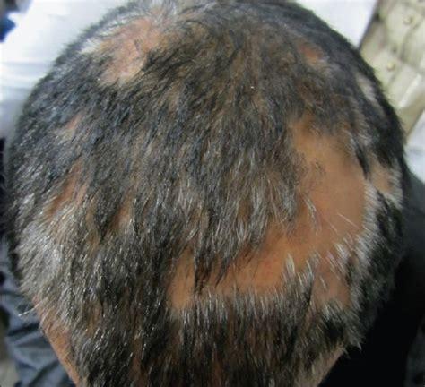 moth eaten pattern hair loss view image