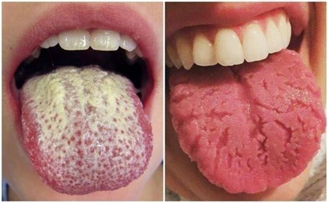 white pattern tongue 12 warning signs your tongue is sending about your health