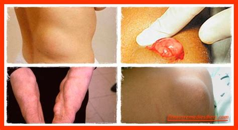 Lipoma Detox by What Is A Lipoma Lipoma Treatment How To Remove
