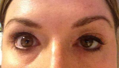 how long does botox last doctor answers tips realself how long will partial eyelid droop from botox last photo