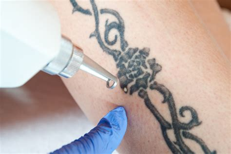 how to become tattoo removal specialist how to find the best laser removal specialist