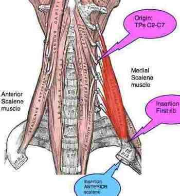 Inter scalene triangle is a narrow passage affecting ... Scalene Muscles