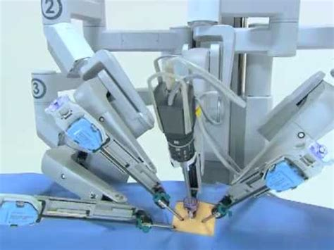 Vs Machine Robots At Japanese Hospital by Da Vinci Surgical System