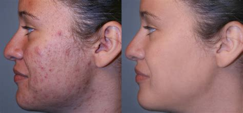 acne scars causes amp treatment the esthetic clinic