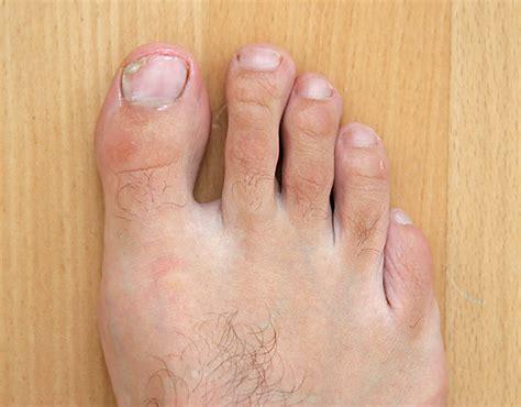 sana quick toenail fungus sana nail fungus sana quick for nails hairstylegalleries
