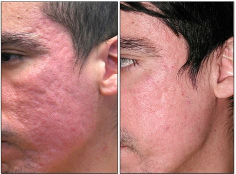 best acne scar treatment acne scars acne scarring paramedical and laser