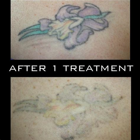 blank slate tattoo removal 100 clean slate laser removal photos for