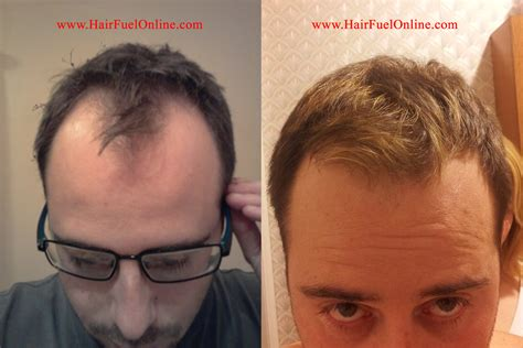 best hair growth treatment 2013 2013 top hair loss treatments 10 best hair loss