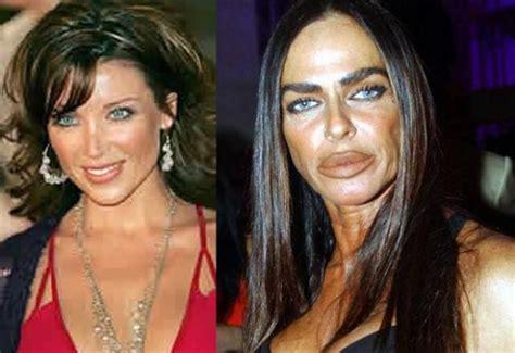 imagenes impactantes cirugias lista famosos irreconocibles antes y despu 233 s de la cirug 237 a
