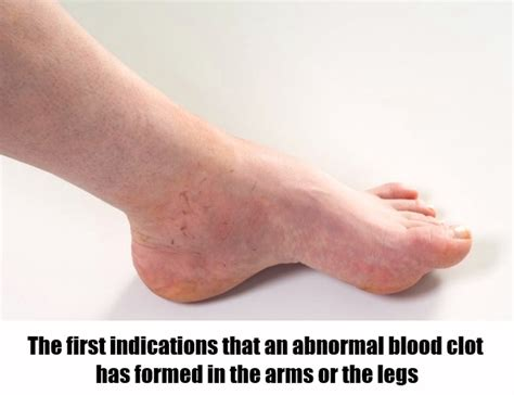 blood clot in leg blood clots in legs yasmin symptoms of