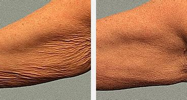crepey skin on arms non invasive treatment for wrinkled skin thermage