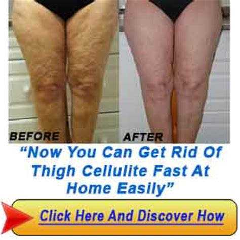 Cellulite 101 Definition And Cause by How Do You Get Rid Of Stomach Acid Liss Cardio Workout