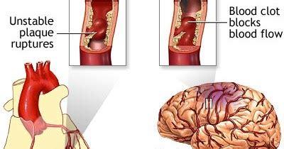 Obat Herbal Jantung Diabetes Kolestrol Strok asuhan keperawatan stroke non hemoragik askep stroke non hemoragik snh
