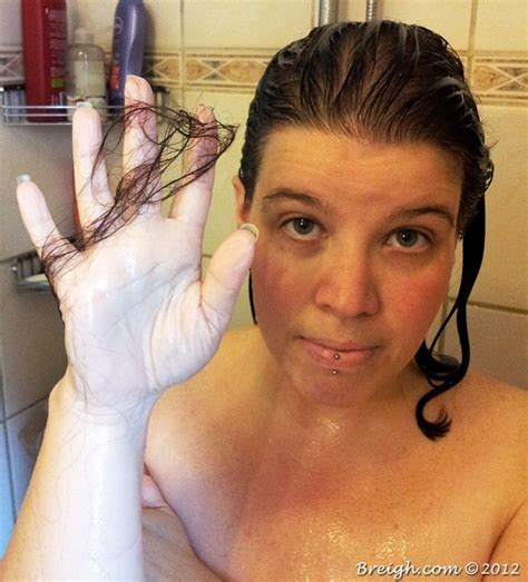 Can Showers Cause Hair Loss by Gastric Bypass Getting Real About Hair Loss Canadutch