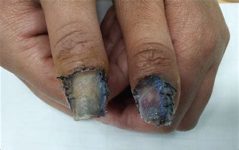 short nail beds short nail beds nail bed expansion a new technique for