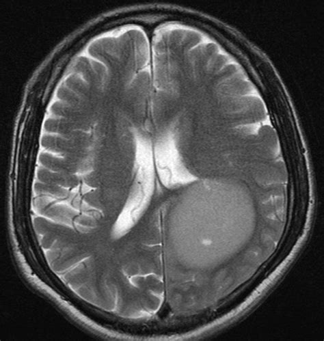 Copy Mri The Central Nervous System primary cns lymphoma image radiopaedia org