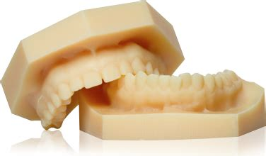 digital models orthodontic digital services china orthodontic laboratory